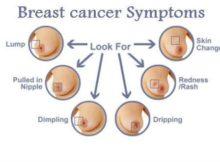 Stan Breast Cancer Ke Lakshan Aur Bachne Ke Gharelu Upay Nuskhe