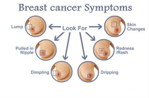 Breast Cancer Ke Lakshan Aur Bachne Ke Upay
