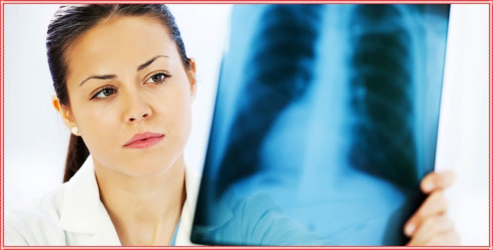 TB ka Gharelu Ilaaj – Tuberculosis Symptoms, Treatment & Prevention