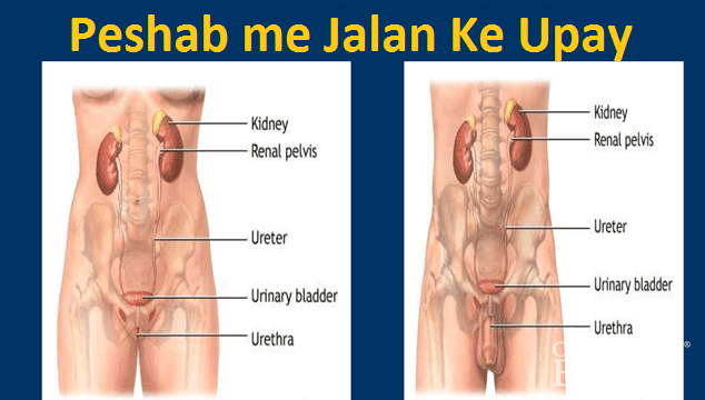 Peshab Me Jalan ka Ilaj Urinary Tract Infection in Hindi
