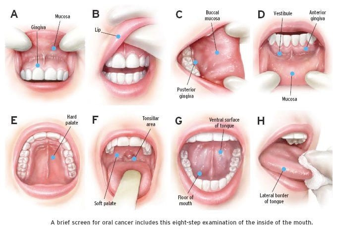 Symptoms of Mouth Cancer and Treatment in Hindi