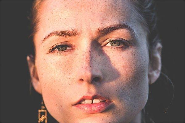 चेहरे-से-झाइयां-ख़त्म-करने-का-इलाज-home-remedies-to-get-rid-of-freckles