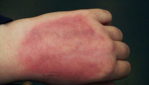 जलने के निशान हटाने के घरेलू उपचार Treatment for Burn Skin in Hindi