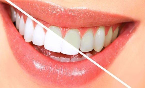 पीले दांतों को सफ़ेद करने के आसान घरेलू उपाय और आयुर्वेदिक तरीके