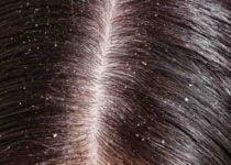 बालों से रूसी हटाने के आसान उपाय एवं घरेलू तरीके - Home Remedies to Get Rid of Dandruff from Hair in Hindi