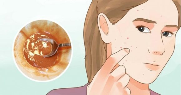 चेहरे के दाग धब्बे हटाने के घरेलू उपाय - असरदार नुस्खे - Home Remedies for Dark Spots on Face in Hindi