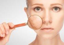 चेहरे से झाइयां हटाने के आसान उपाय एवं घरेलू आयुर्वेदिक उपचार - Home Remedies for Pigmentation in Hindi