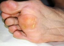 फुट कॉर्न (गोखरू) से छुटकारा पाने के लिए घरेलू उपचार - Home Remedies for Foot Corn and Calluses in Hindi