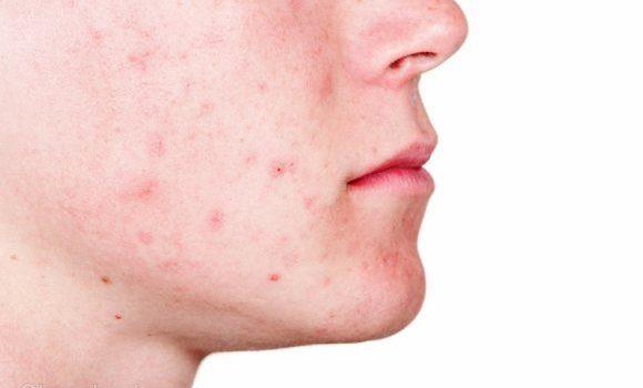 Home Remedies for Face Pimples Hindi चेहरे से कील मुंहासे हटाने के घरेलु नुस्खे चमत्कारी उपायChehre Ke Muhanse